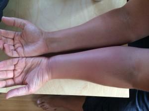 Mina armar båda två!! En med getingstick. De jävla getingarna får mig verkligen att längta tillbaka till tiden då BARA bananflugorna var problemet...